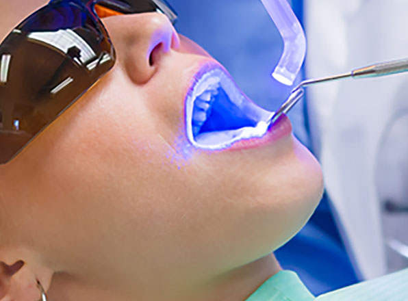 Dentist Las Vegas Teeth Whitening Patient